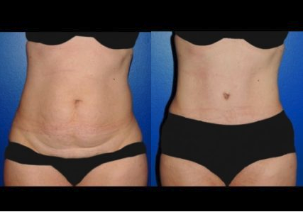 Tummy Tuck Before & After Syracuse