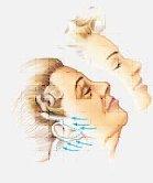 facelift surgery syracuse ny