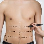 Liposuction for Men Syracuse, NY