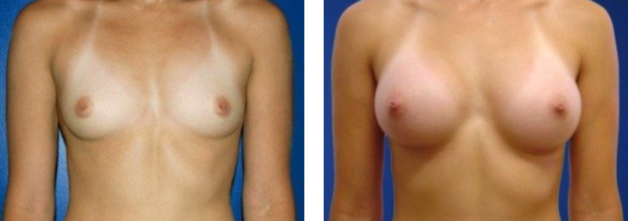 Before & After Breast Augmentation | DeRoberts Plastic Surgery | Syracuse, NY