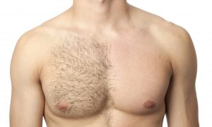 Laser Hair Removal Men Syracuse NY