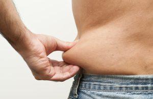 Male Liposuction Syracuse NY