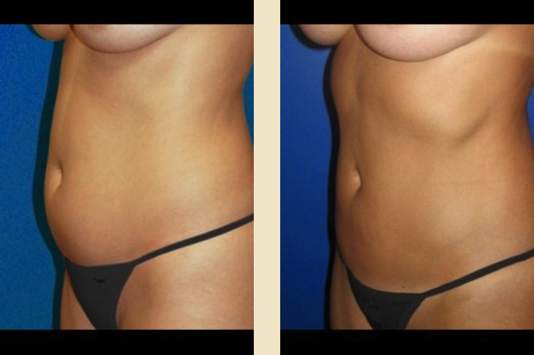 Before & After Liposuction | DeRoberts Plastic Surgery | Syracuse, NY