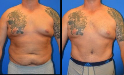 Male Tummy Tuck Before & After