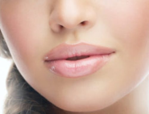 3 Considerations to Make Before You Get Lip Injections