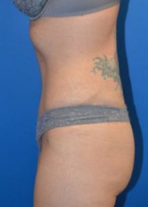 Tummy tuck aftershot syracuse