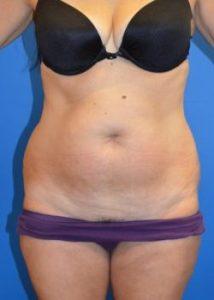 tummy tuck before photo syracuse