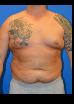 Before-Male Tummy Tuck
