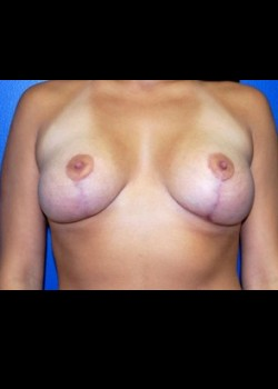 After-Breast Lift