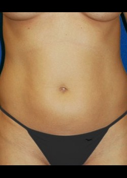Before-Liposuction