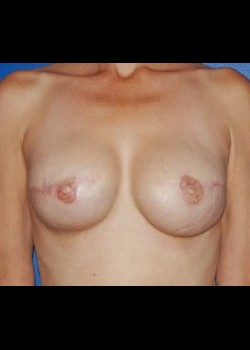 After-BreastReconstruction