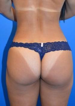 After-Brazilian Butt Lift