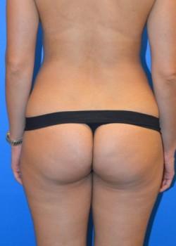 Before-Brazilian Butt Lift