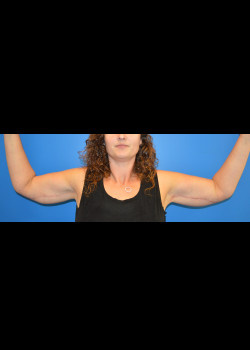 After-Arm Lift