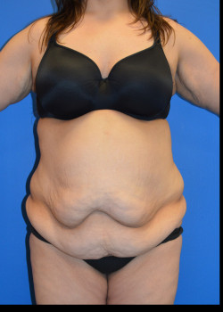 Before-Panniculectomy