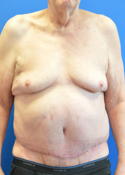 After-Panniculectomy