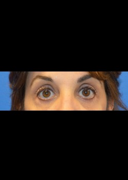 After-Eyelid Surgery