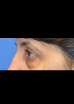 Before-Eyelid Surgery