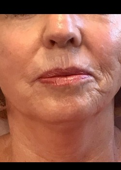 Radial Lip Lines (Smokers Lines) with Juvederm Ultra Plus